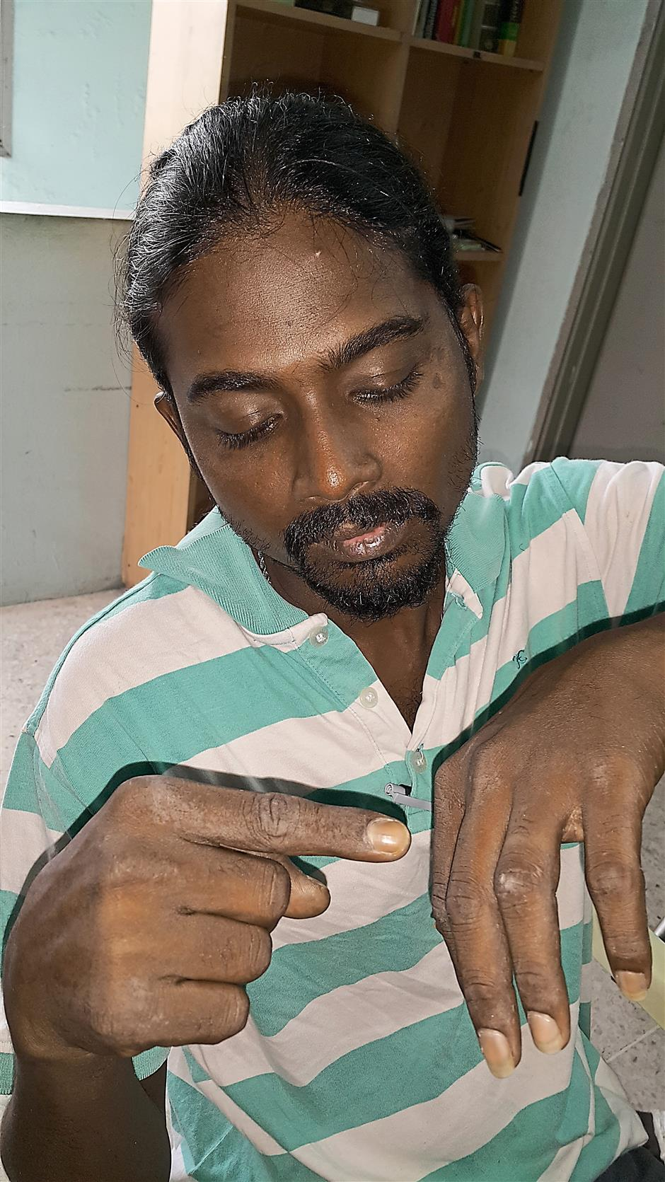Victim: Meganathan showing his finger which was bitten by a rat while receiving treatment at the Tengku Ampuan Rahimah Hospital.