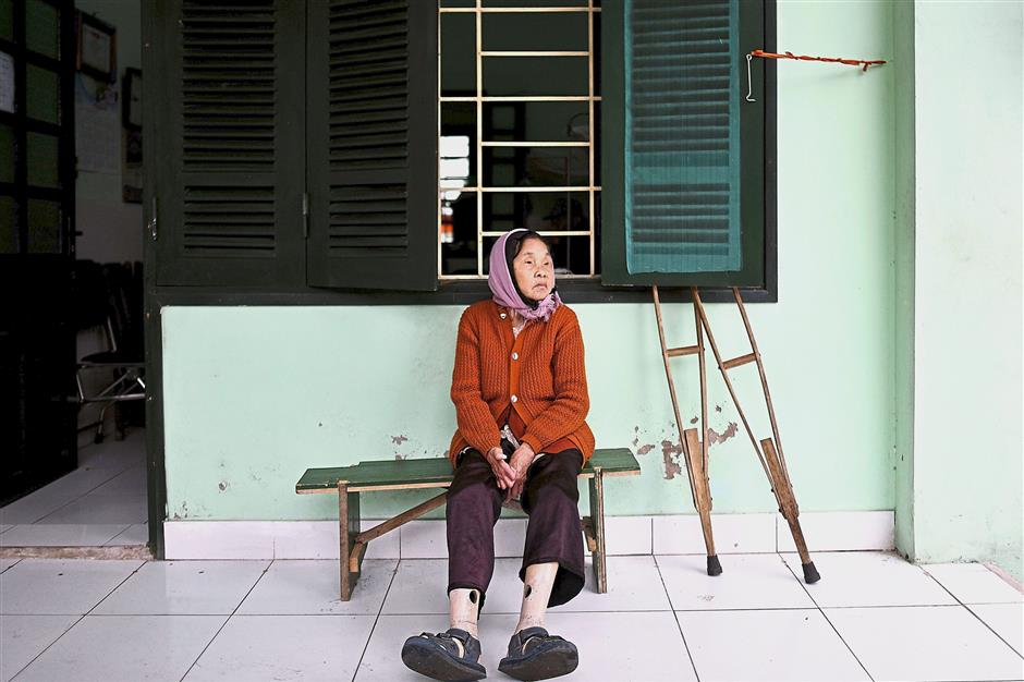 Watching the days go by: Survivor Nguyen Thi Teo sitting outside her room at the Van Mon Leprosy hospice in Thai Binh province. u2014 AFP
