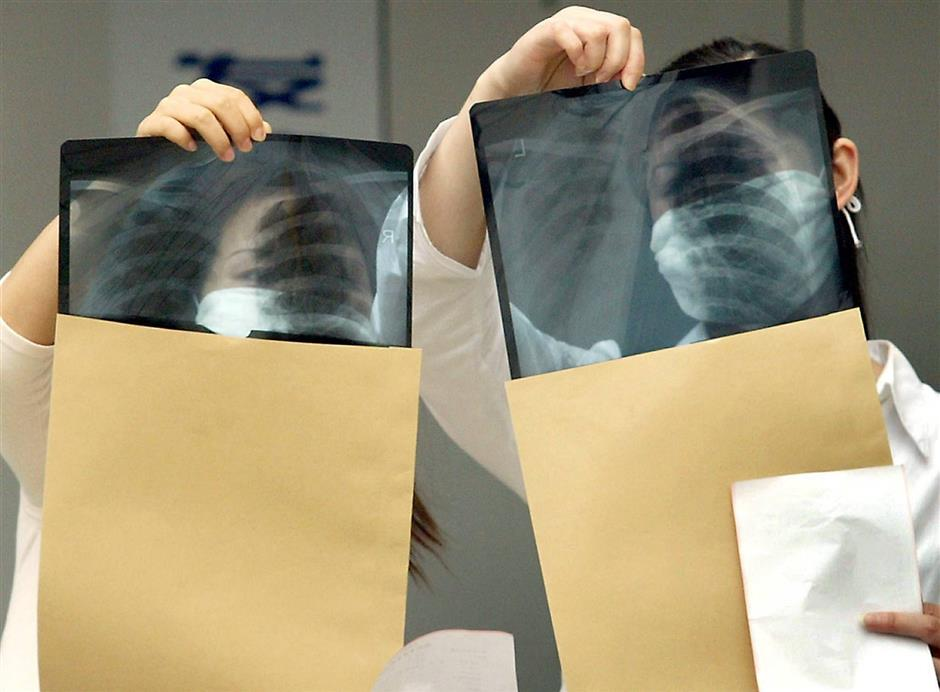 The Doctor Says: All about TB | The Star Online