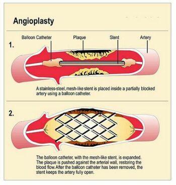 p5angioplasty