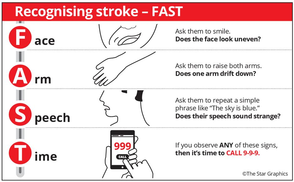 Act FAST in a brain attack | The Star Online