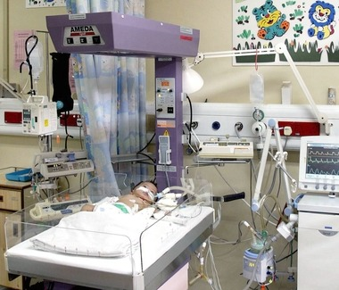 Developing pneumonia is a serious affair for young children, and may result in them being admitted to either the Paediatric Intensive Care Unit (PICU, as seen here) or the High Dependency Unit, like Aliya.