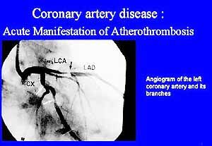 sf_pg09coronary