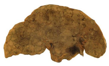 A human liver with both cirrhosis and cancer (the black areas). Cirrhosis is the end result of chronic liver damage caused by chronic liver diseases, and an important causal agent is chronic hepatitis C infection.