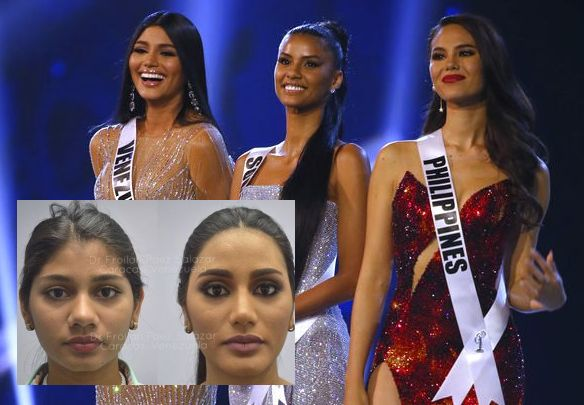 Cosmetic surgery photos of Miss Universe 2018 2nd runner-up go viral