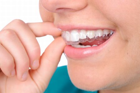 Does your child need a dental retainer? | The Star Online