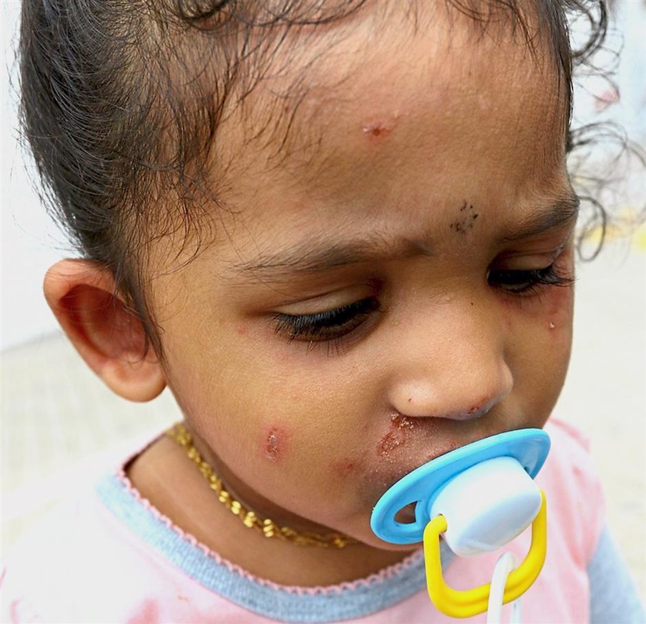 Poisonous pest: Rove bettles gave Sushiksha some nasty rashes at Shineville Garden In Air Itam.