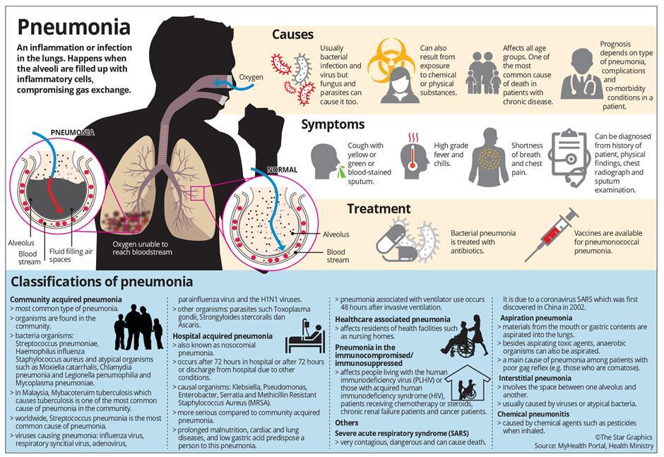 How dangerous is pneumonia? | The Star Online