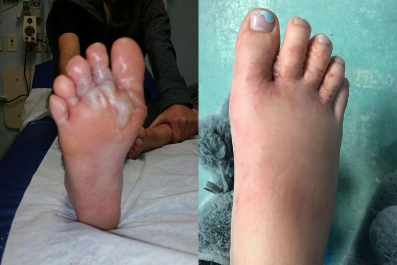 Canadian couple's feet swell from hookworms while walking