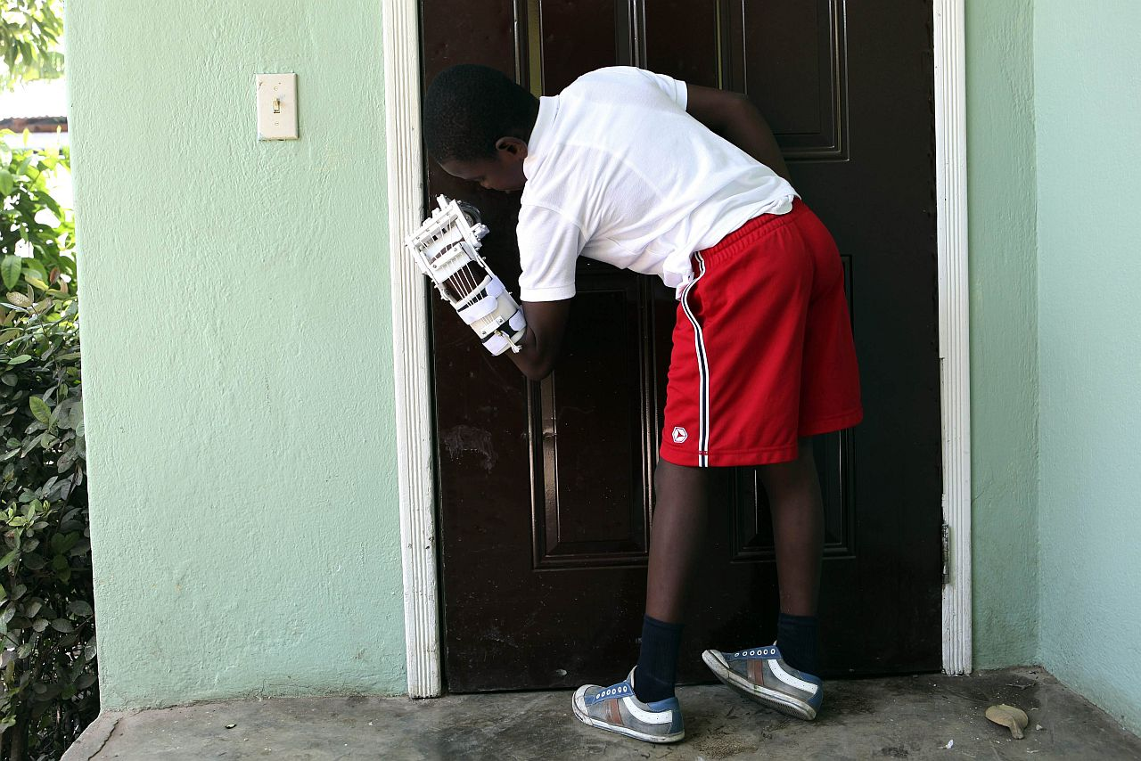 OPENING DOORS: Stevenson now spends his days getting used to his new hand, including learning how to open doors. — Reuters