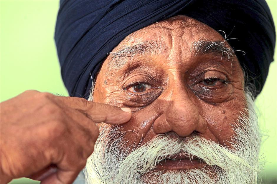 Sukdave showing where the bullet entered when he was shot by the Japanese Red Army in 1975.
