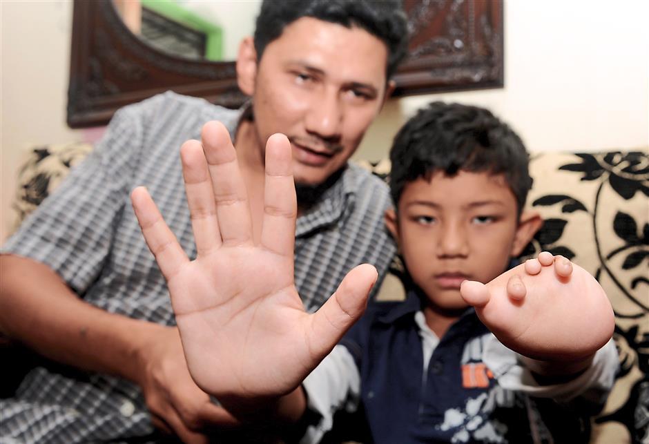GEORGE TOWN, 30 Jan -- Muhammad Muqri Mifzal, 8, menunjukkan tapak tangan kiri yang cacat bersama tapak tangan kanan yang normal sambil dibantu oleh bapanya Rhemi Rizal Mohd Azmi di kediamannya di Sungai Nibong Kechil di sini hari ini.Muhammad Muqri yang cacat tapak tangan kiri sejak dilahirkan kini berasa gembira setelah mendapat tangan bionik (mekanikal) yang didermakan oleh pereka tangan bionik, Sujana Mohd Rejab.--fotoBERNAMA (2015) HAKCIPTA TERPELIHARA