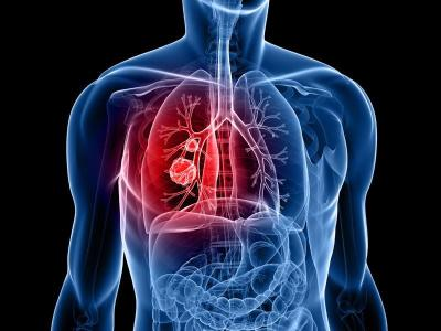 Lung cancer cells can progress rapidly, even in the early stages. As such, early diagnosis is the key to treatment.